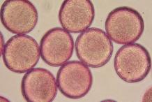 Pollen-of-Cowslip
