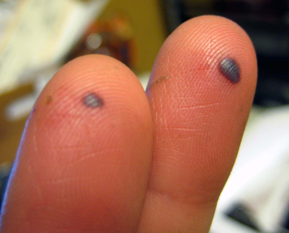 Watch How to Prevent a Blood Blister video